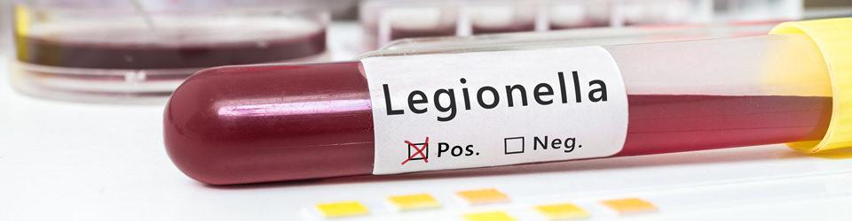 legionella-badania